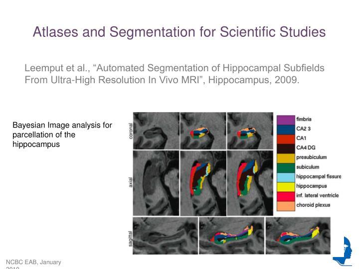 Atlases and Segmentation for Scientific Studies