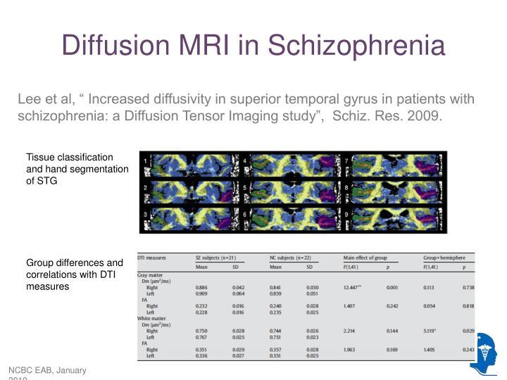 Diffusion MRI in Schizophrenia