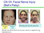 cn vii facial nerve injury bell s palsy