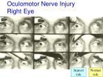 oculomotor nerve injury right eye