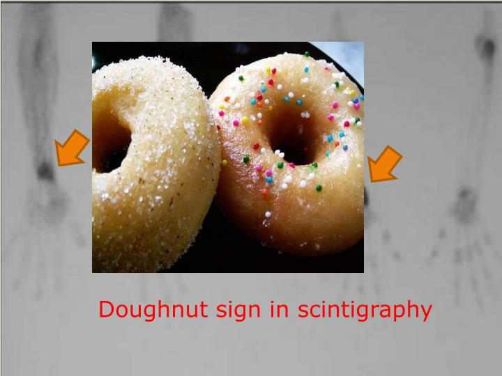 Doughnut sign in scintigraphy