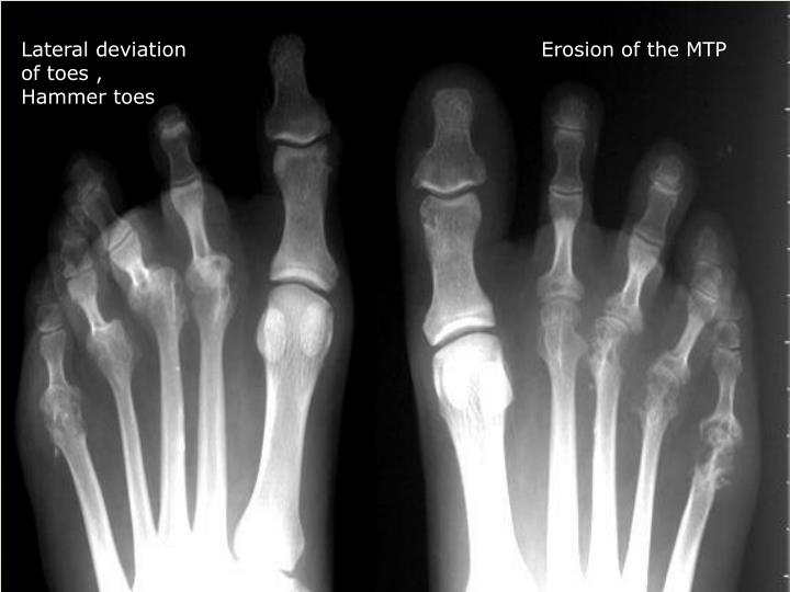 Lateral deviation of toes , Hammer toes