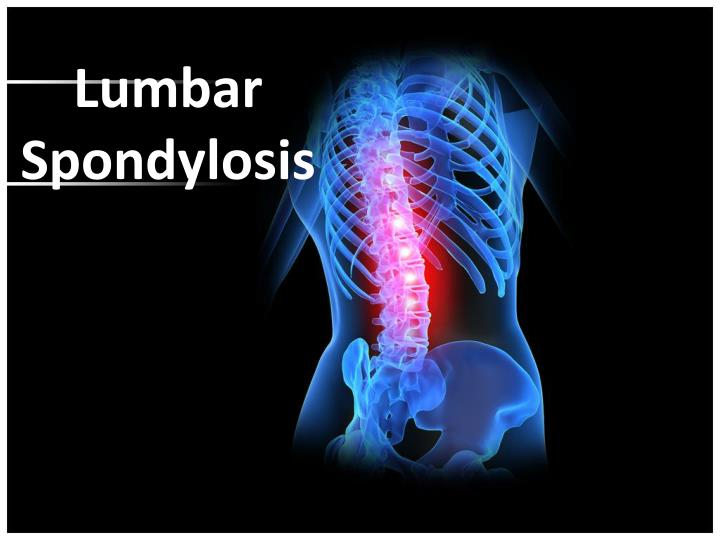 symptoms of spondylothesis Learn about the types and symptoms of spondylolisthesis the most common symptom of spondylolisthesis is lower back pain types include dysplastic, isthmic, degenerative, traumatic, and pathologic.