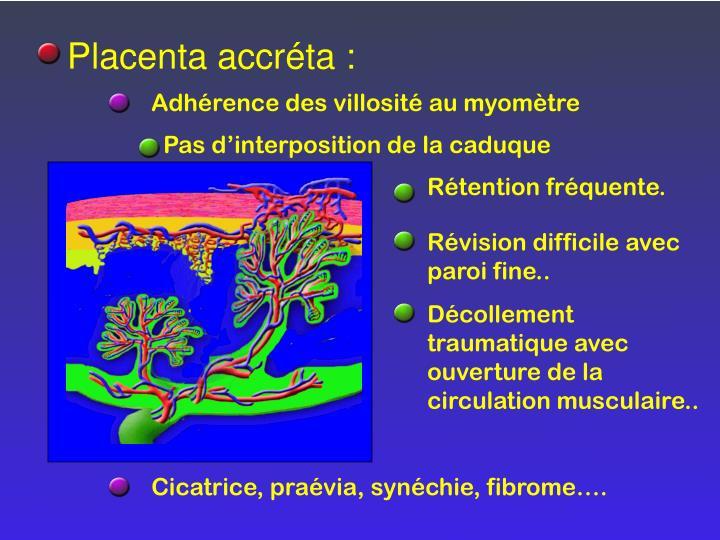Placenta accréta :