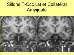 sillons t occ lat et collat ral amygdale