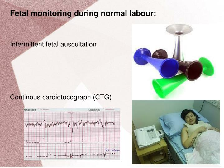 Fetal monitoring during normal labour: