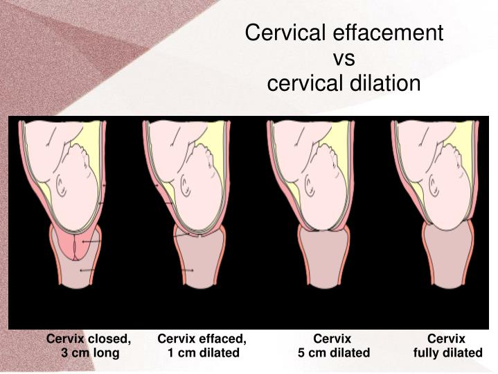 Cervical effacement
