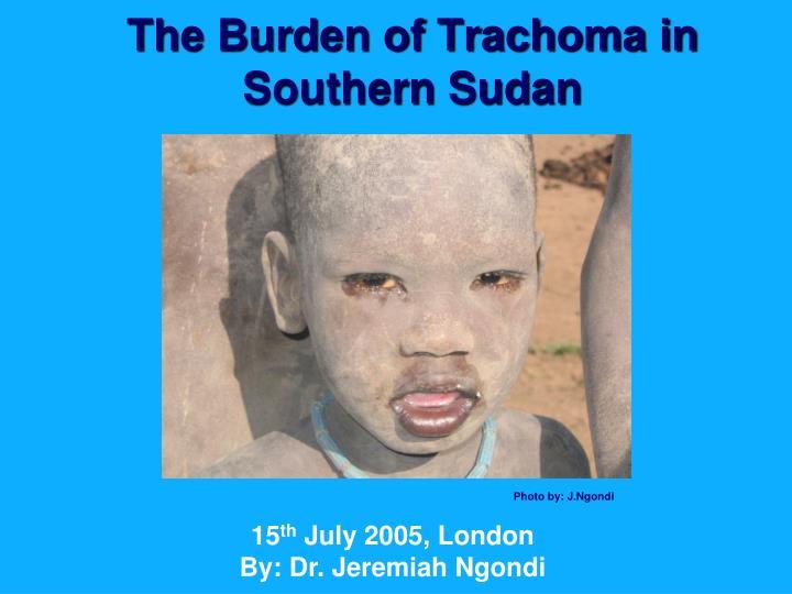 The Burden of Trachoma in