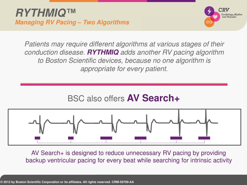 PPT - AV Synchrony Restored PowerPoint Presentation - ID:1835435