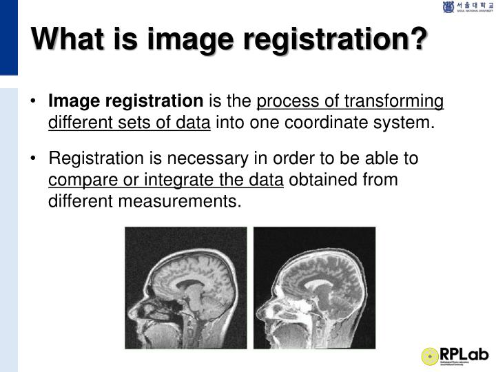 What is image registration