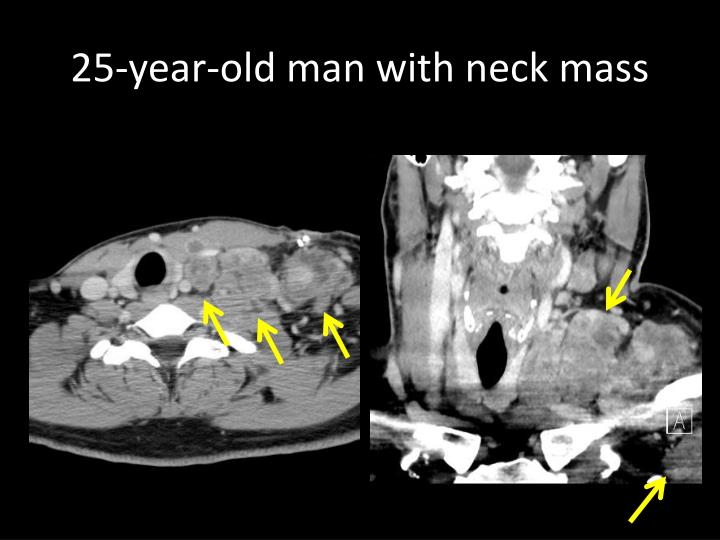 25-year-old man with neck mass