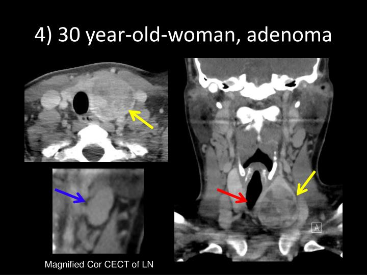 4) 30 year-old-woman, adenoma