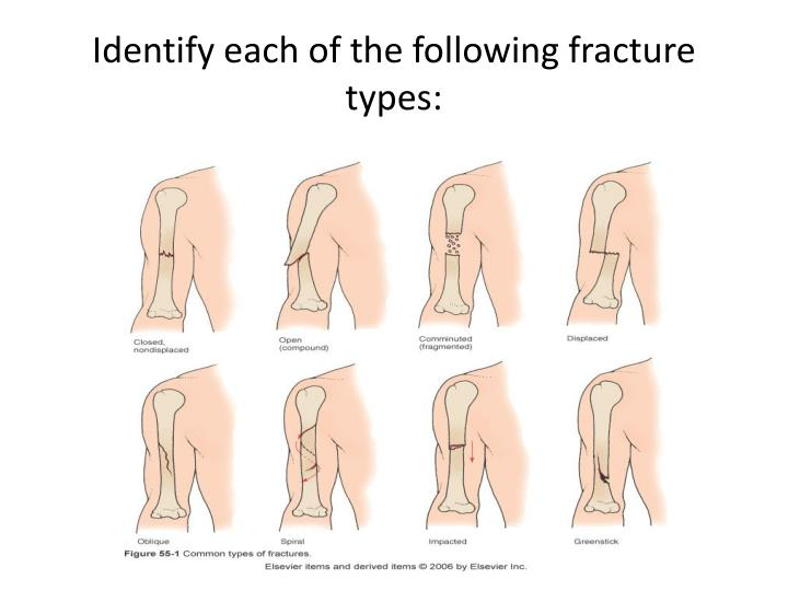 Identify each of the following fracture types:
