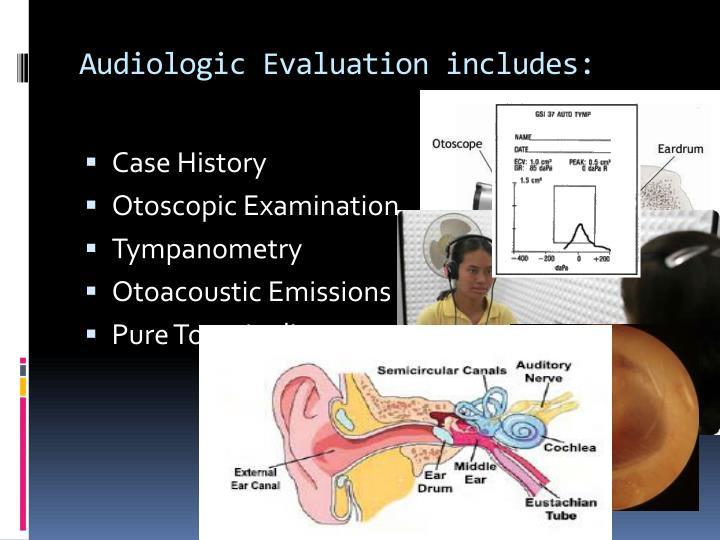 Audiologic Evaluation includes: