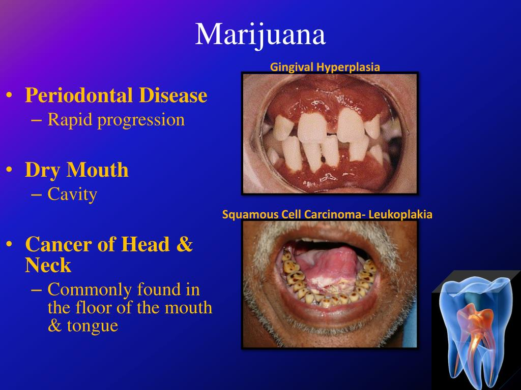 PPT - Welcome Home  Welcome to Oral Health  PowerPoint