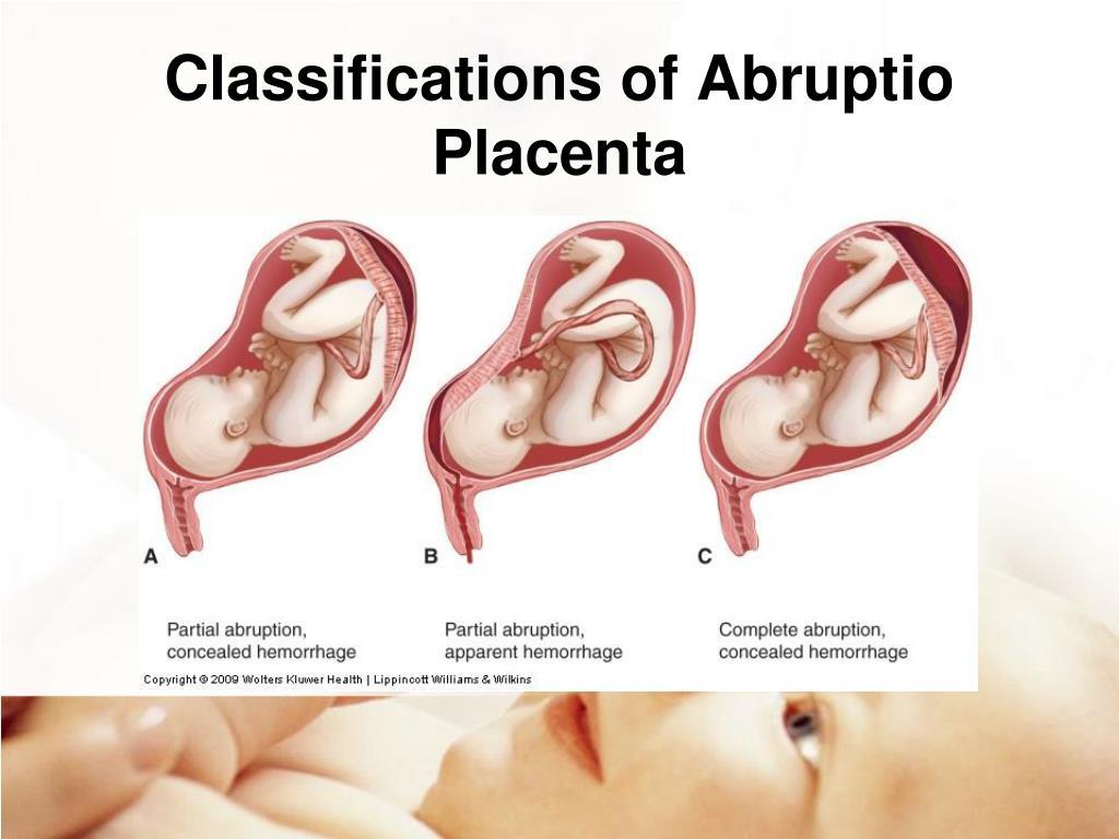 PPT - Management of Pregnancy at Risk Chapter 19 ...