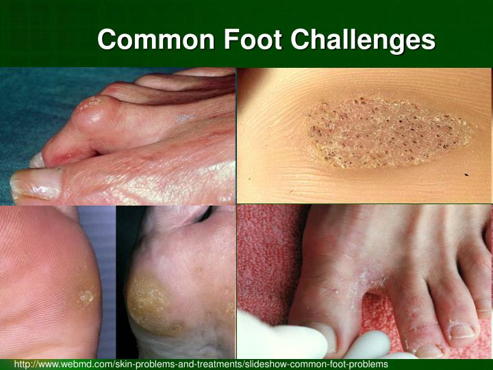 Common Foot Challenges