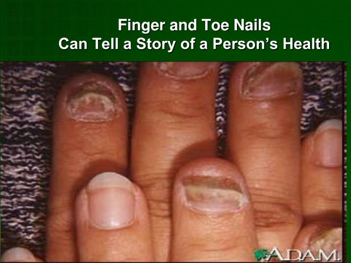 Finger and Toe Nails