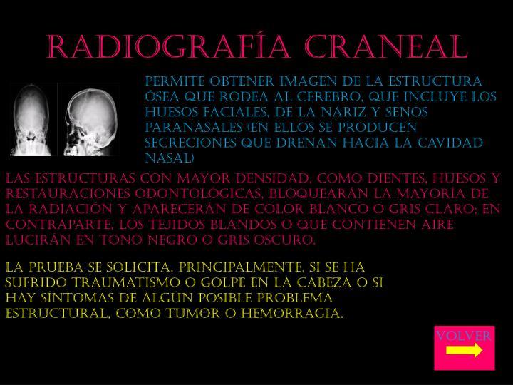 Radiografía craneal