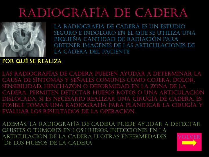 Radiografía de cadera