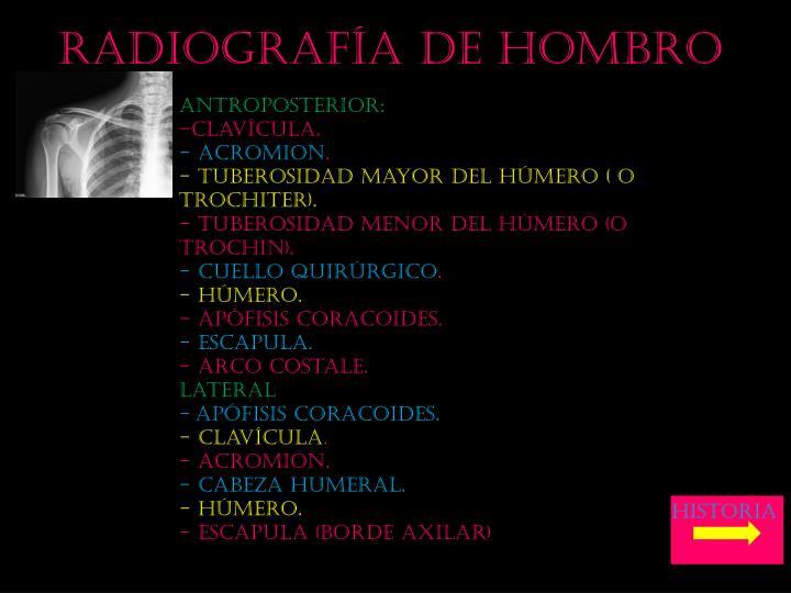 Radiografía de hombro