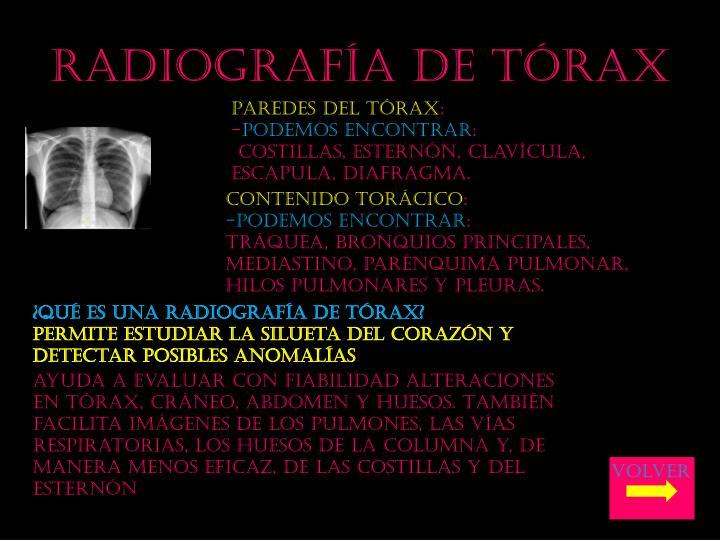 Radiograf a de t rax