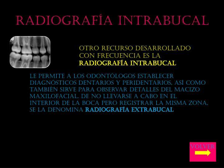 Radiografía intrabucal