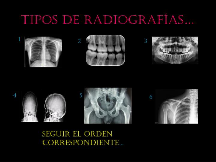 Tipos de radiograf as