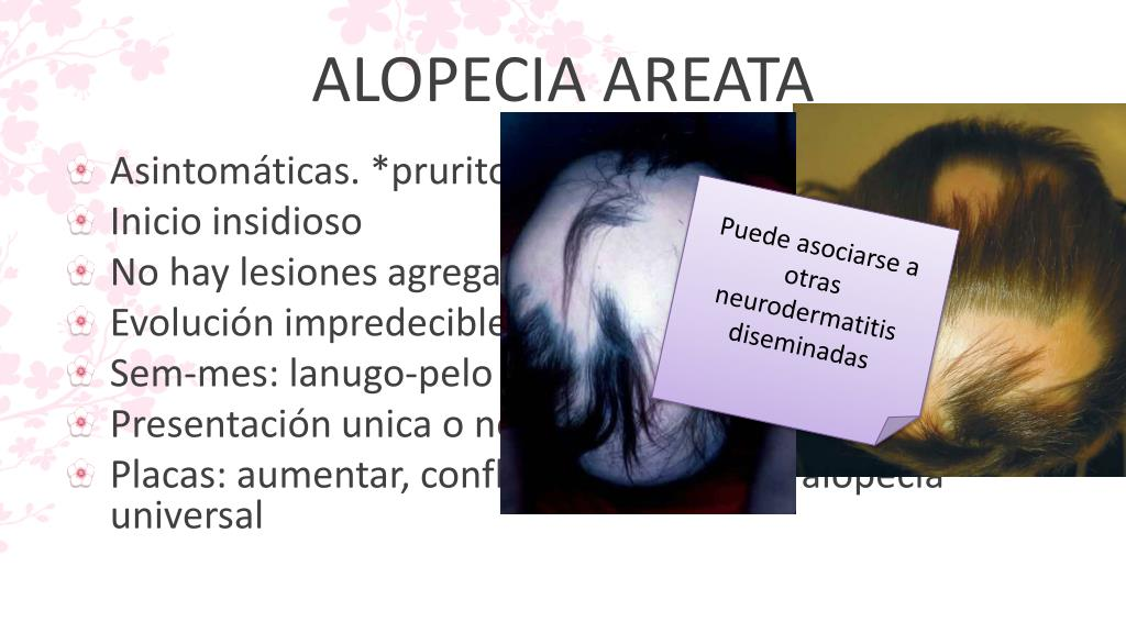 alopecia hipertónia kezdeti magas vérnyomás