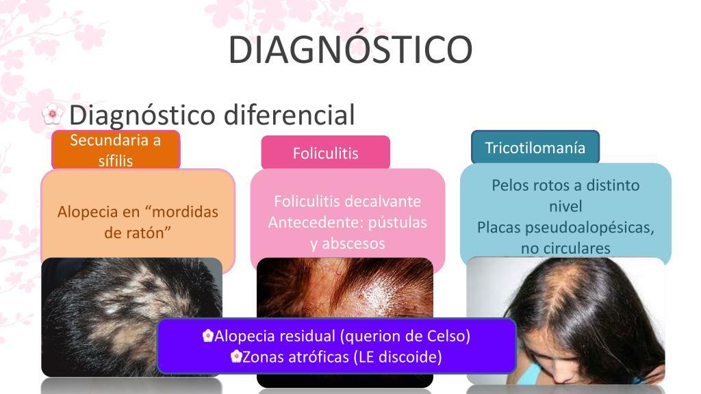 alopecia hipertónia