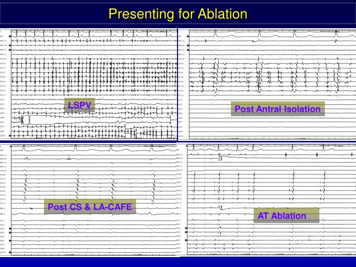 Presenting for Ablation