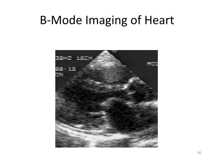 B-Mode Imaging of Heart