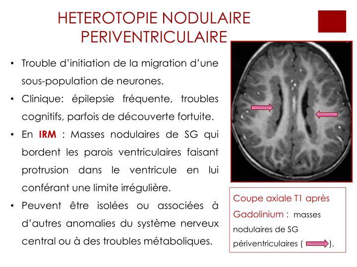 HETEROTOPIE NODULAIRE PERIVENTRICULAIRE