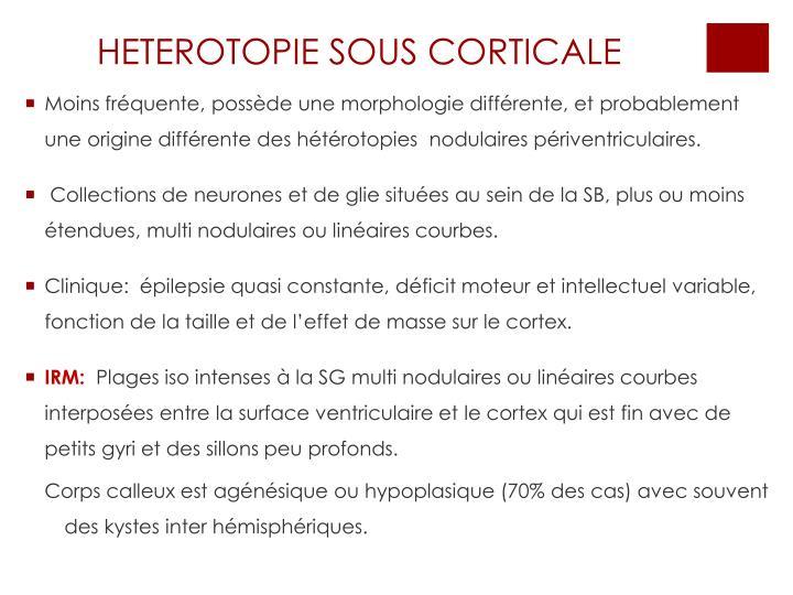 HETEROTOPIE SOUS CORTICALE