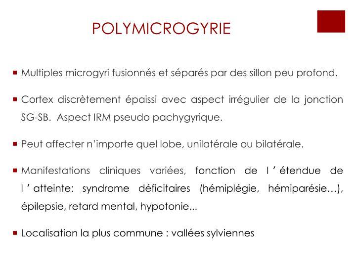 POLYMICROGYRIE