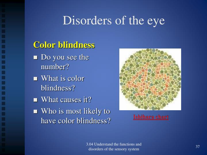 Disorders of the eye
