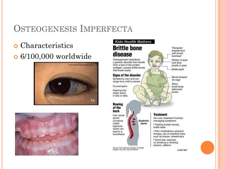 Ppt Osteogenesis Imperfecta Col1a1 Powerpoint