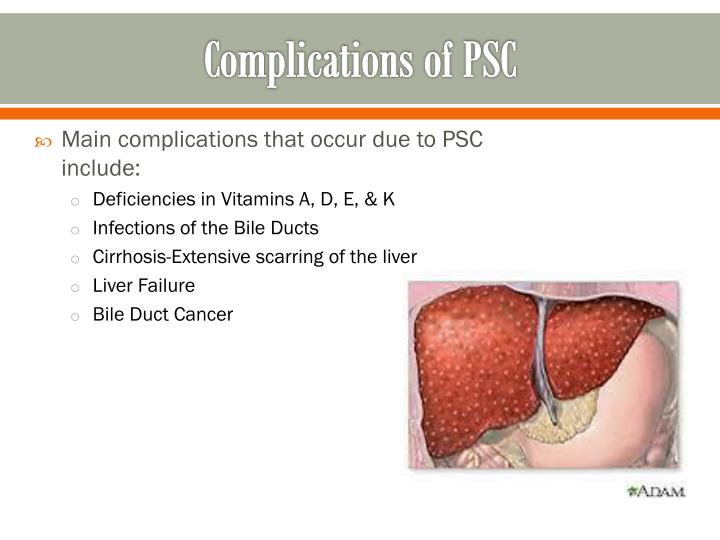 Complications of PSC