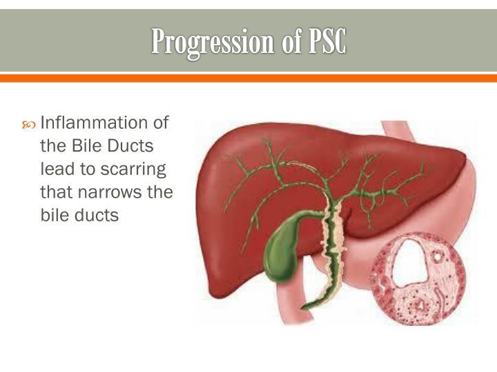 Progression of psc
