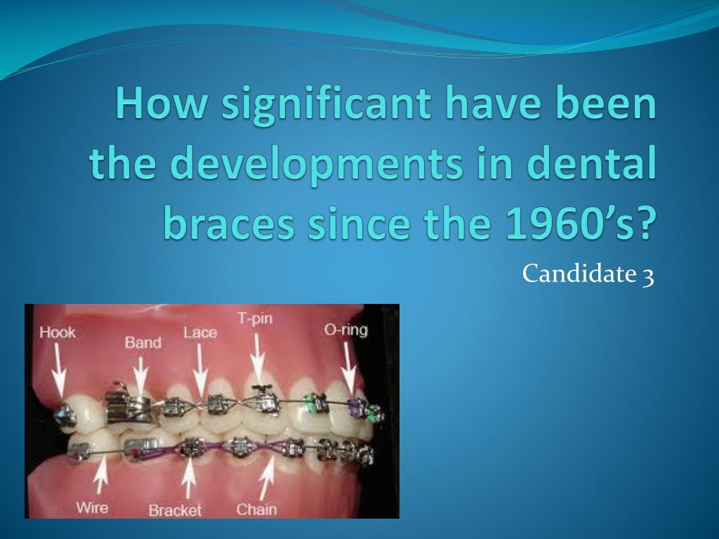 PPT - How significant have been the developments in dental braces ...