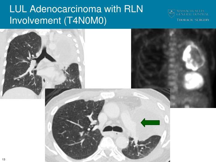 LUL Adenocarcinoma with RLN Involvement (T4N0M0)