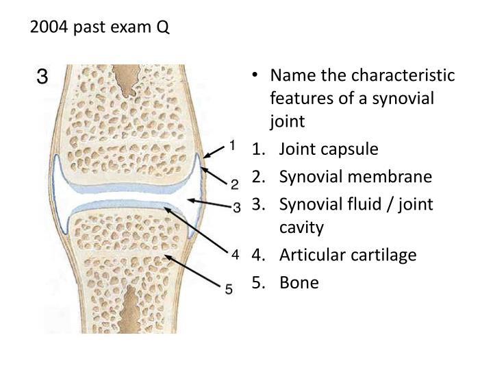 2004 past exam q