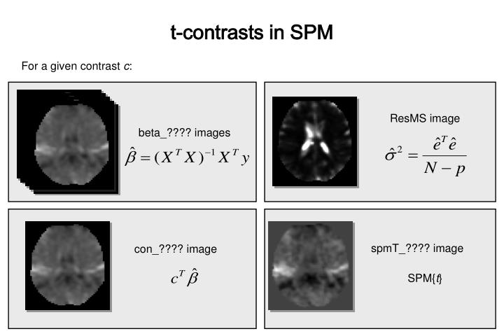 t-contrasts in SPM