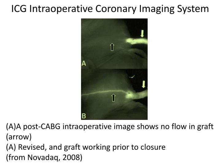 ICG Intraoperative Coronary Imaging System