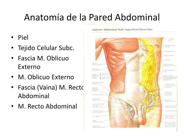 PPT - Hernias de la Pared Abdominal PowerPoint Presentation - ID:1887368