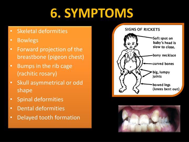 6. SYMPTOMS