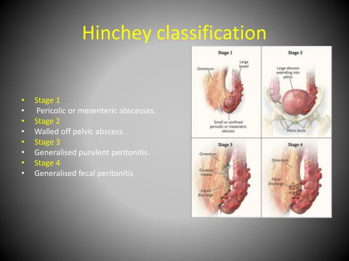 Hinchey classification