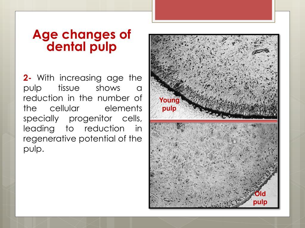 PPT - Dental pulp PowerPoint Presentation - ID:1897407