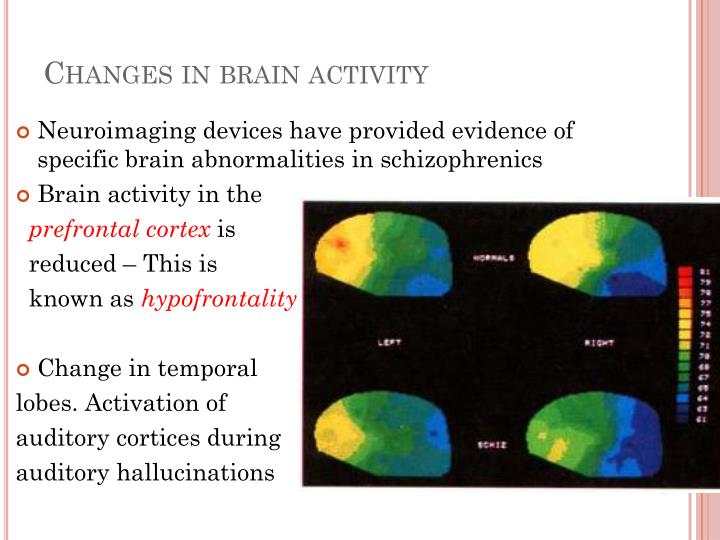 Changes in brain activity