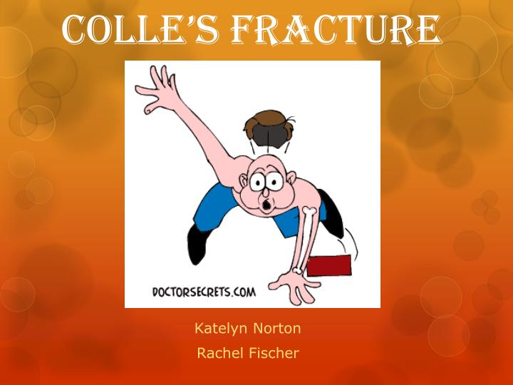 colle s fracture n.